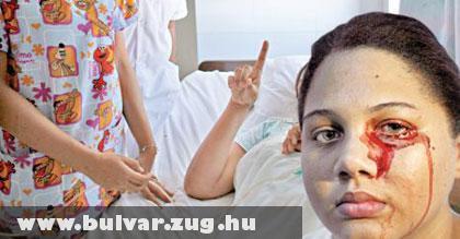 Vért sír egy román tini