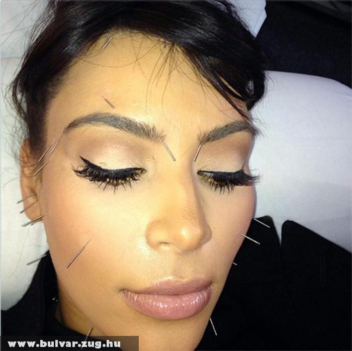 Kim Kardashian akupunktúrázni jár