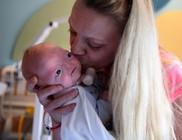 A kis Eli orr nélkül született